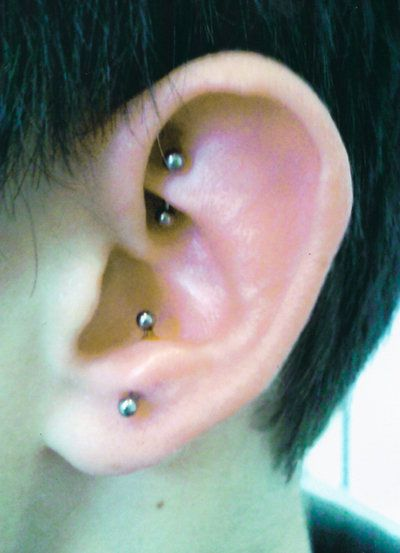 Rook and Anti- Tragus
