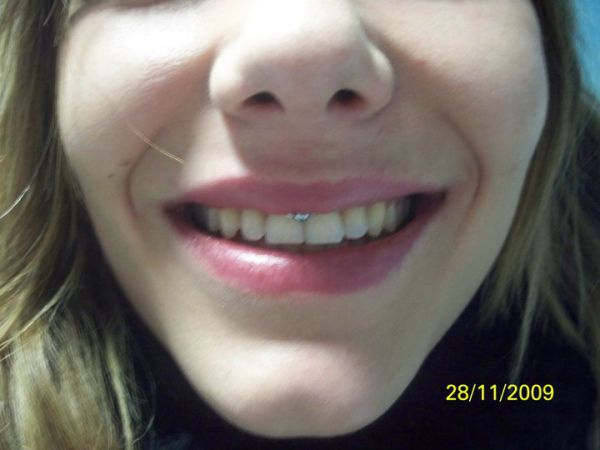 frenulum piercing. #39;Smiley#39; / Lip Frenum piercing
